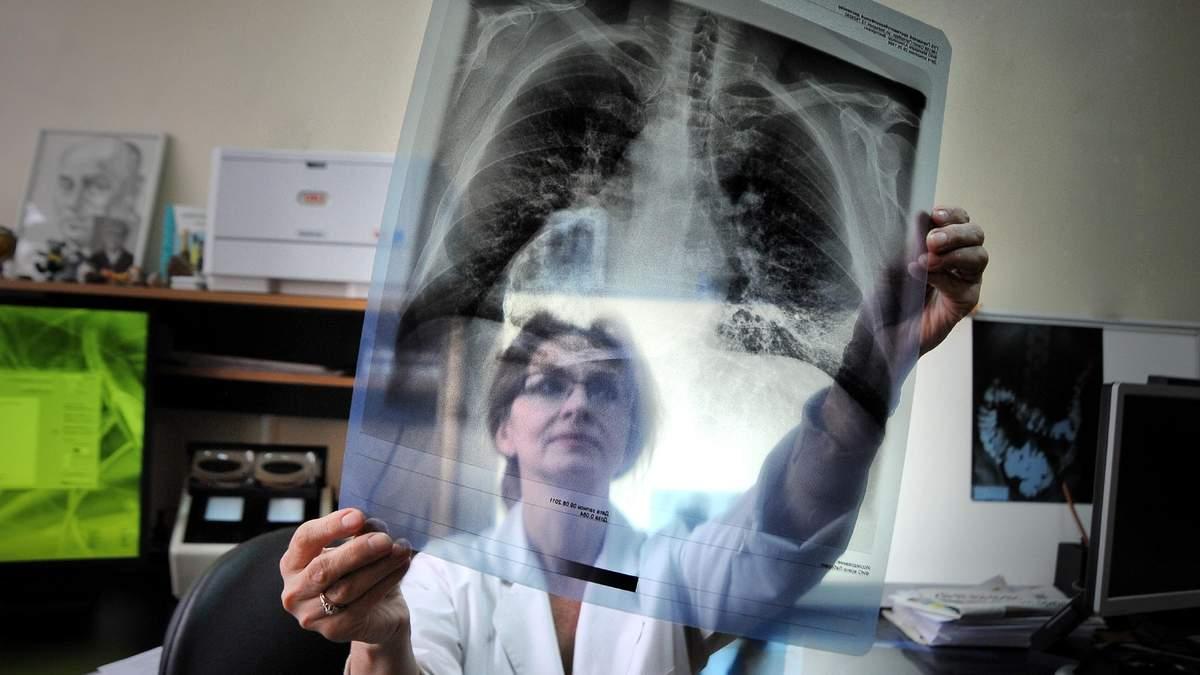 Чи є в Україні епідемія туберкульозу