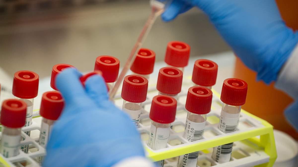 Заражения на коронавирус в Украине – 5 случаев зараженных