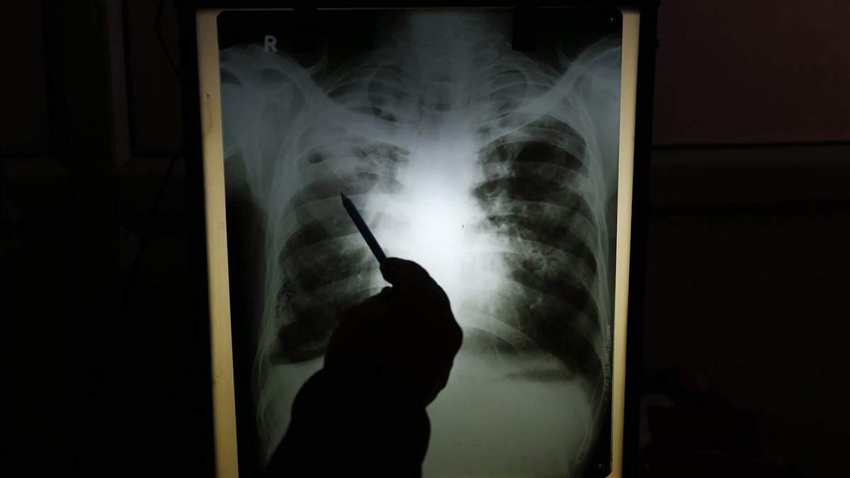 Як коронавірус змінює легені