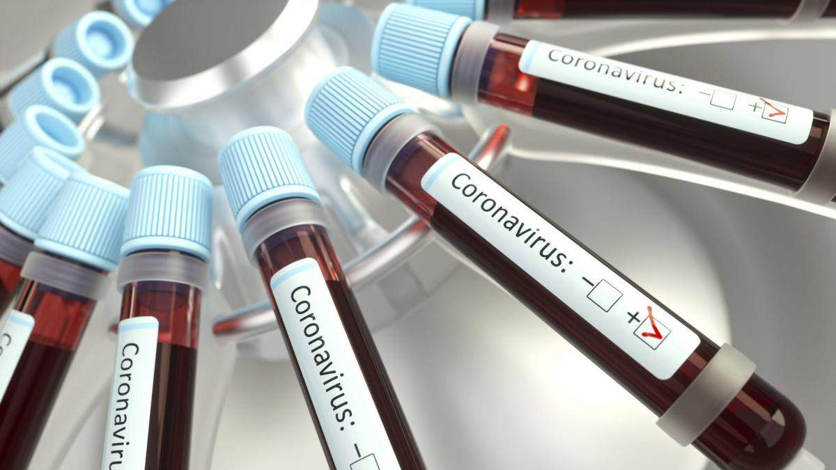 Депутатам, которые контактировали с инфицированным Шаховым, сделают тест на коронавирус