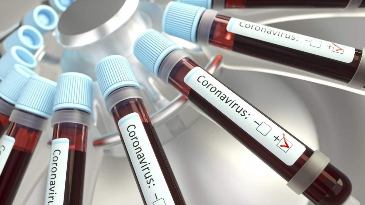 В Украине предусмотрели изготовление тестов коронавируса, но не передали средства Институту НАН
