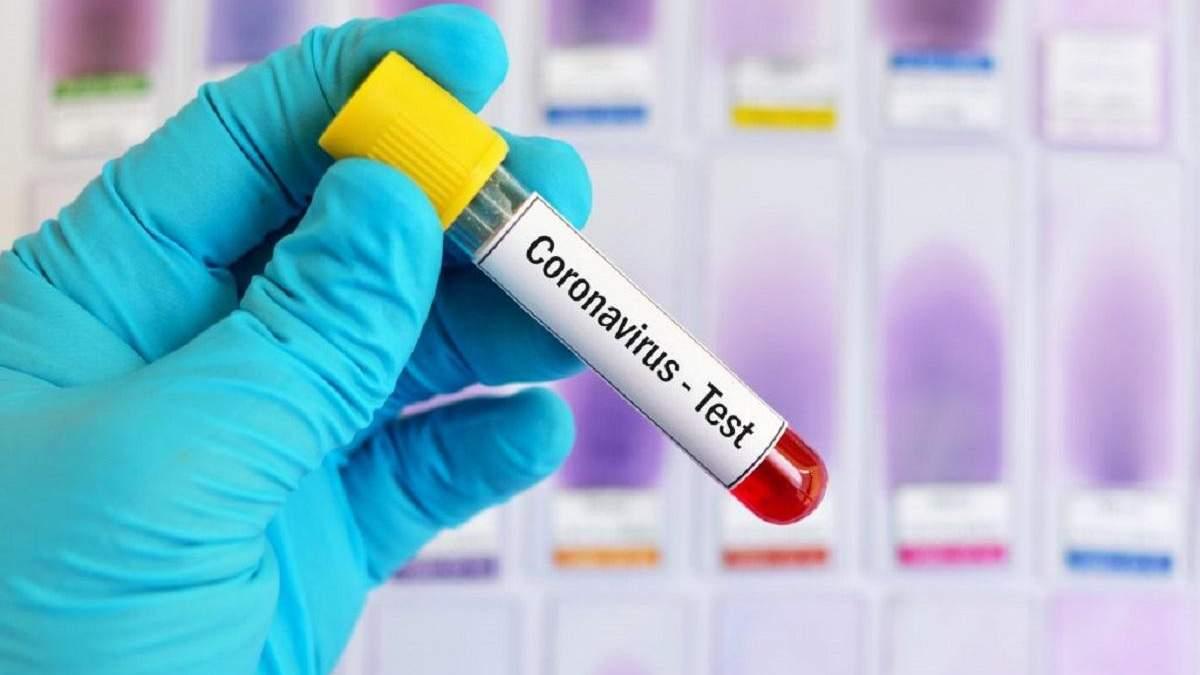 30 березня в Україні підтвердили ще 62 випадки захворювання на коронавірус