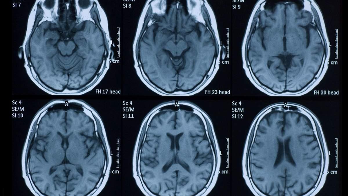 Коронавірус може пошкоджувати мозок: результати дослідження