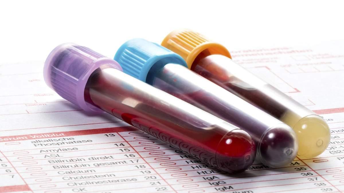 Аналіз крові на онкозахворювання