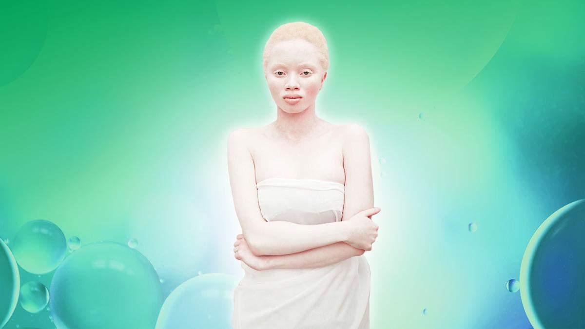 Альбинизм – что это такое, как живут люди-альбиносы