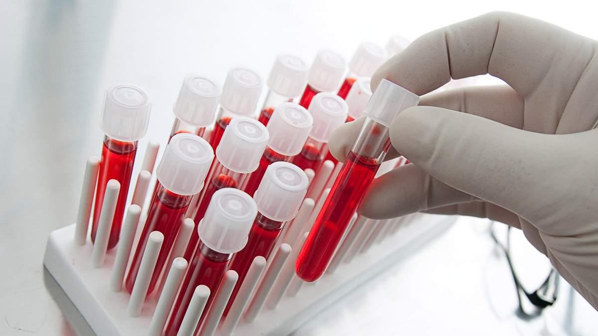 Как коронавирус вызывает инсульт