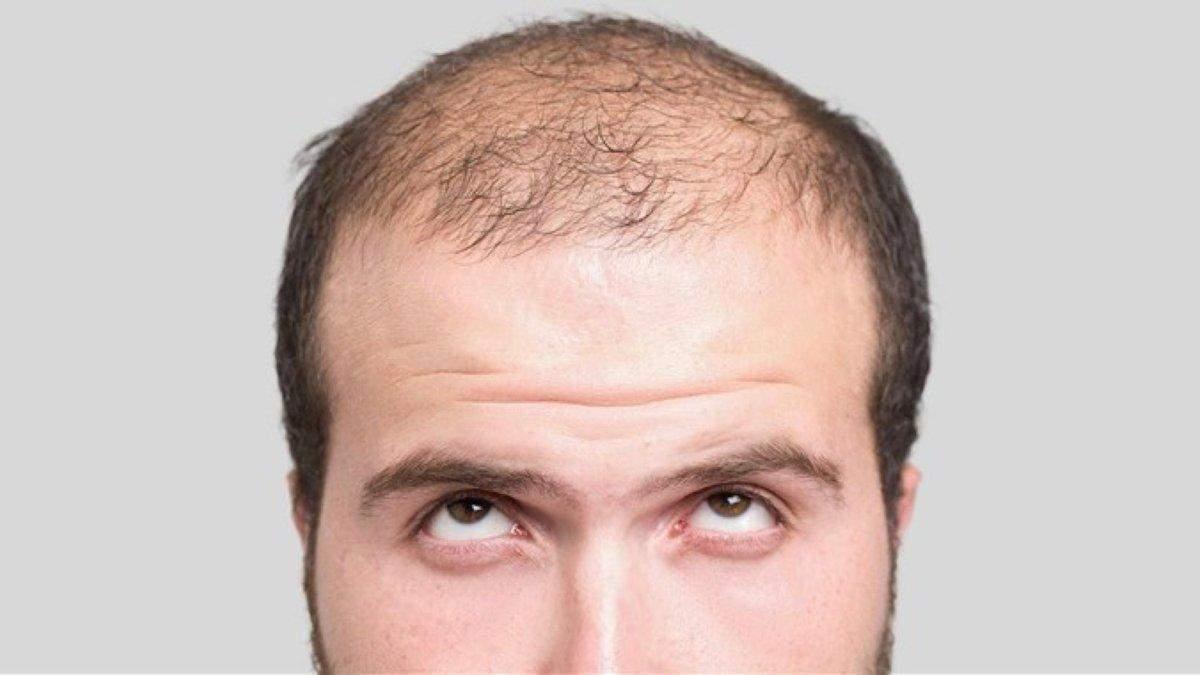 Нашли новый метод восстановления волос: молекула, которая остановит облысение