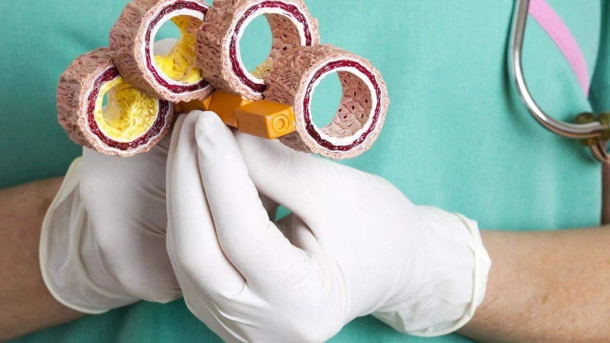 Нашли новую мишень для лечения атеросклероза