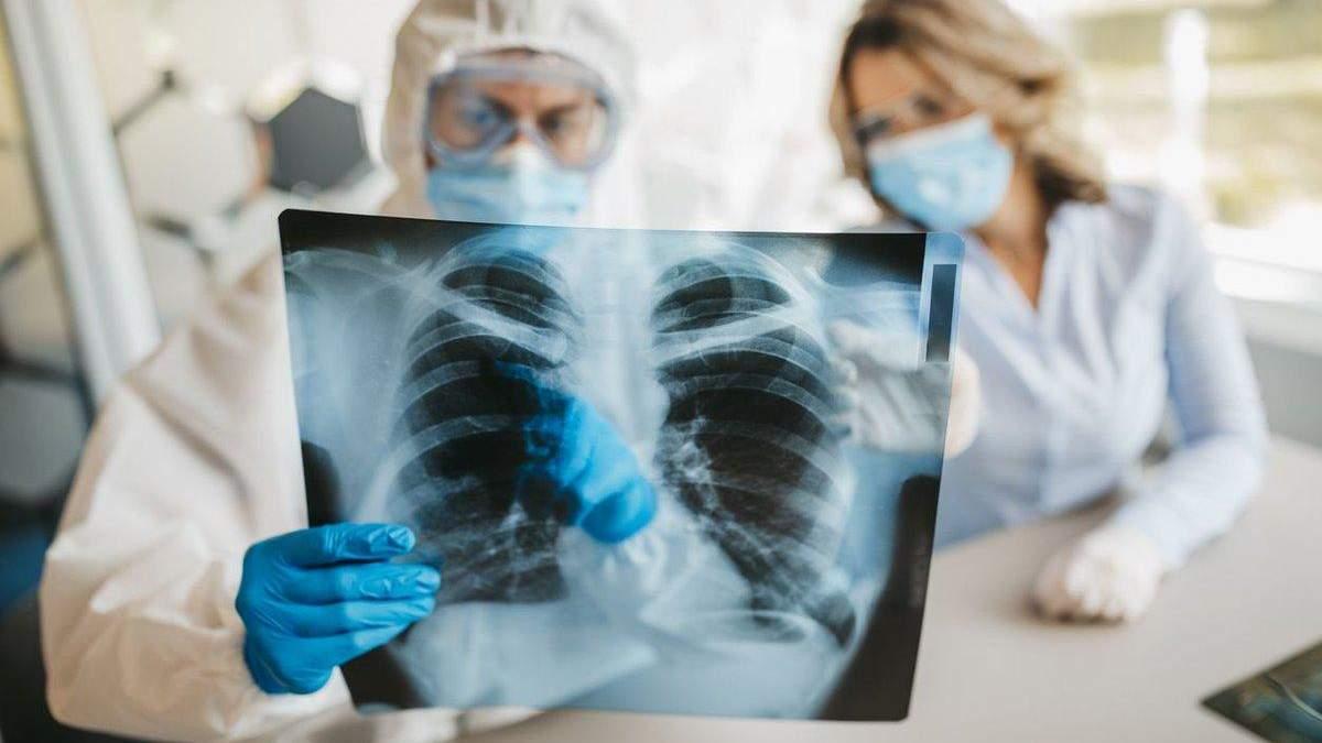 З'ясували, чи відновлюються легені і серце після COVID-19