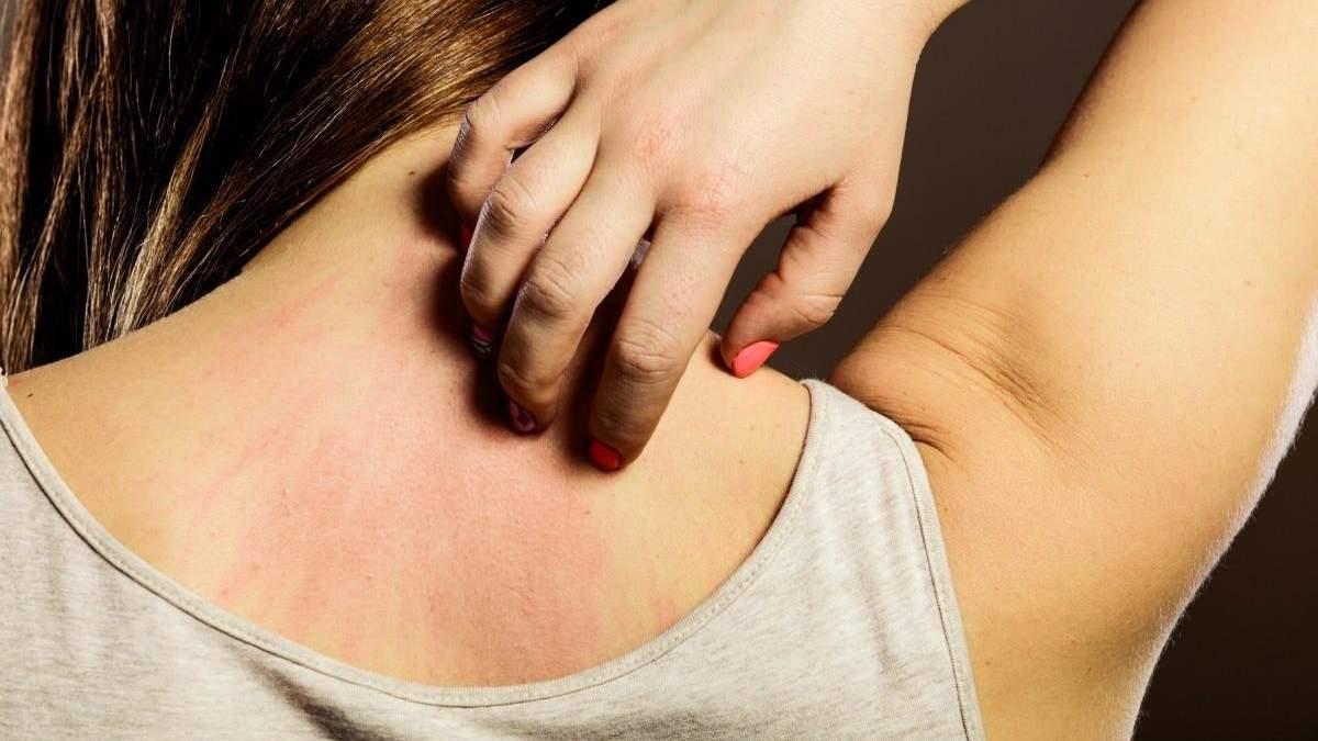 Расчесывание вредит коже: назвали более действенный способ успокоить зуд