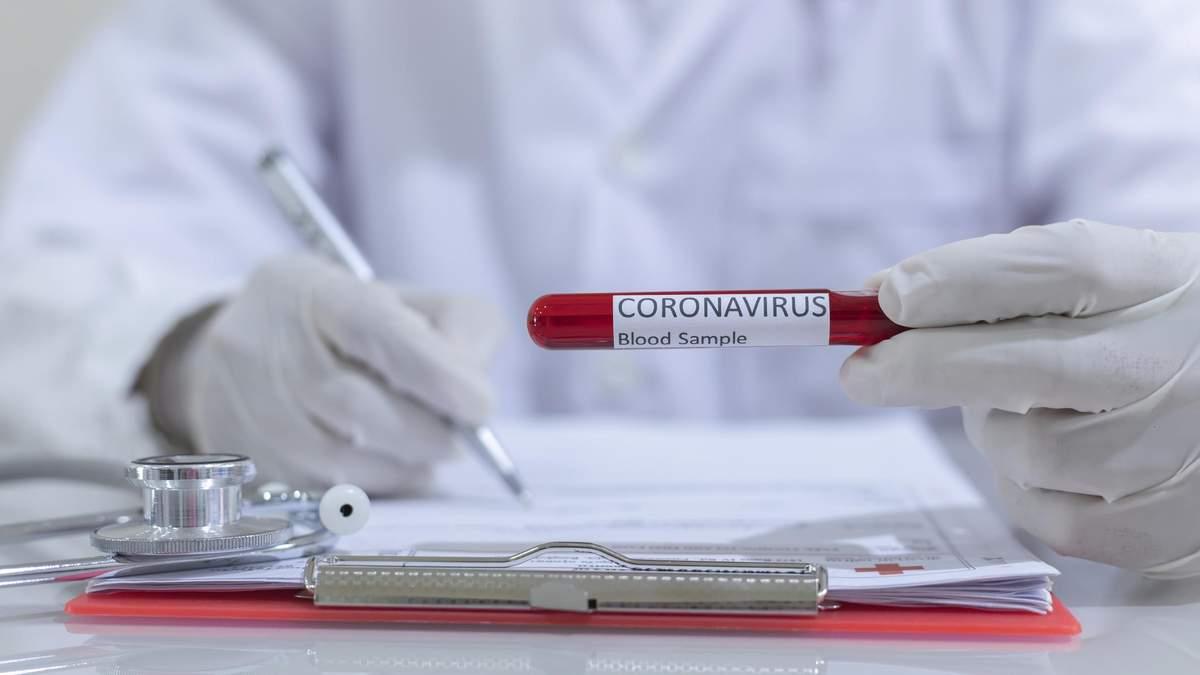 Україна забезпечена тестами на COVID-19 лише на півтора місяця