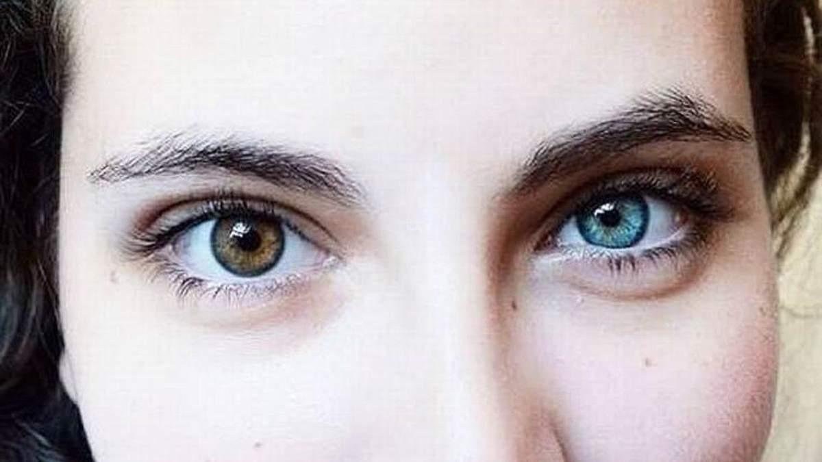 Разный цвет глаз: что такое гетерохромия у людей