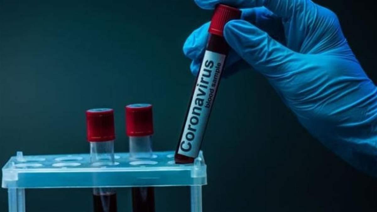 Скільки хворих на коронавірус виявили в Україні