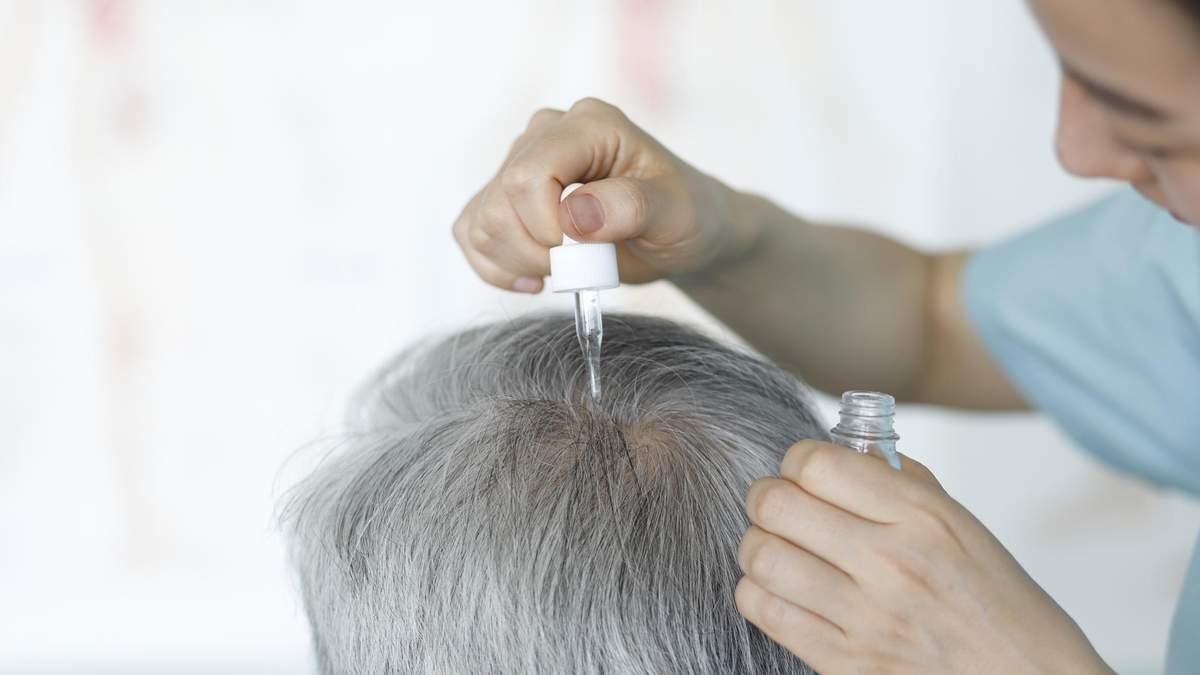 Облисіння: причини та процес випадіння волосся