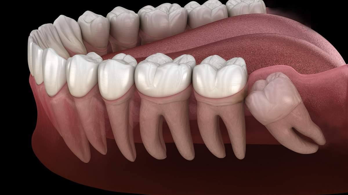Зникають зуби мудрості і з'являється додаткова артерія: вчені виявили нову стадію еволюції