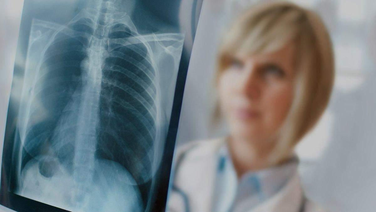 Рак легких при диагностике могут перепутать с COVID-19
