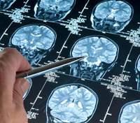 Новий препарат проти раку мозку показав досі неможливий результат