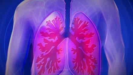Туберкульоз тепер можна діагностувати за півроку появи симптомів