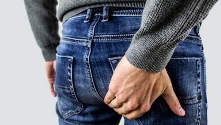 Современные методы лечения геморроя: почему важно при первых симптомах обратиться к врачу