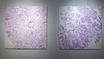 Смертельно красива виставка: у Києві пройшов проєкт, присвячений проблемі раку легені – фото