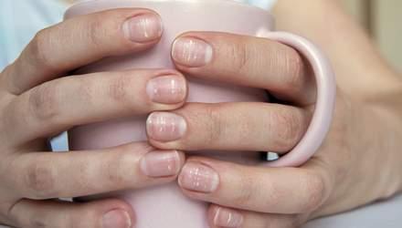 Чому на нігтях з'являються білі плями