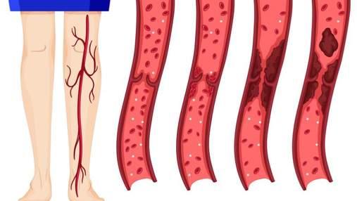 9 небезпечних ознак тромбозу, які не можна ігнорувати