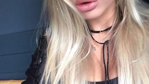 """""""Имплант начал выпадать из груди"""": шведка пострадала от пластической операции в Турции"""