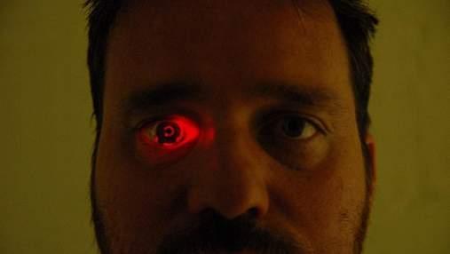 Канадец вставил видеокамеру вместо потерянного глаза: фото