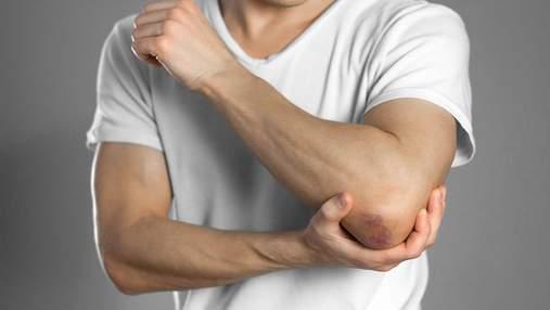Забиття, розтягнення або розрив м'язів: як лікувати