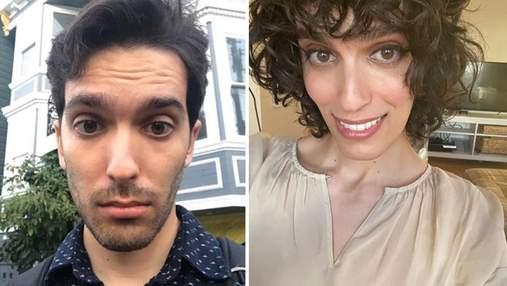 Мужчина сменил пол через 14 месяцев после приема гормонов: шокирующие фото до и после
