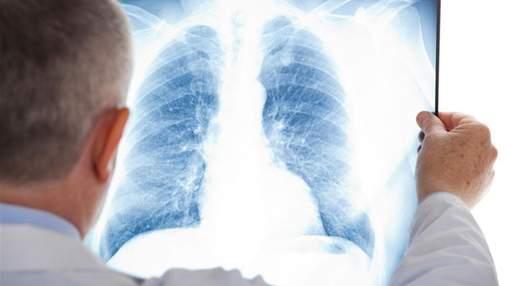 Почему развивается рак легких у некурящих: назвали новый фактор