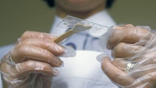 Аналіз на вірус папіломи людини: кому, коли і як