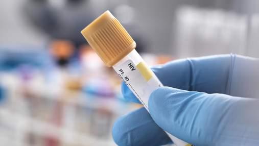 В мире вылечили второго человека от ВИЧ