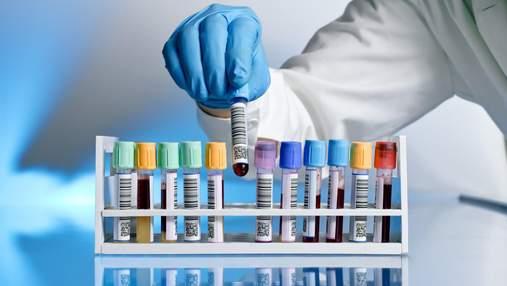 В Україні створили тест, який може перевірити ефективність будь-якої COVID-вакцини