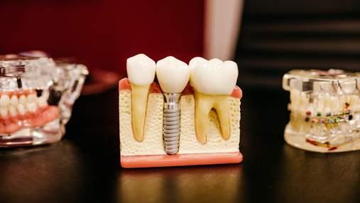 Знайшли спосіб вирощувати нові зуби всього за 1 сеанс