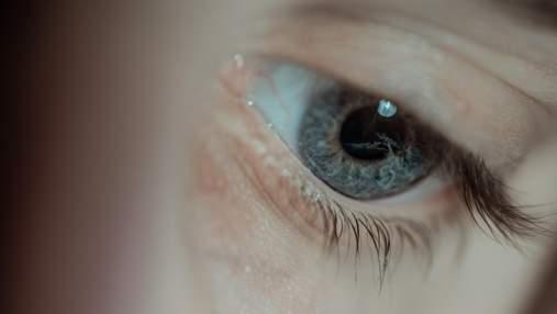 Женщина заклеила себе глаз, потому что перепутала клей с каплями