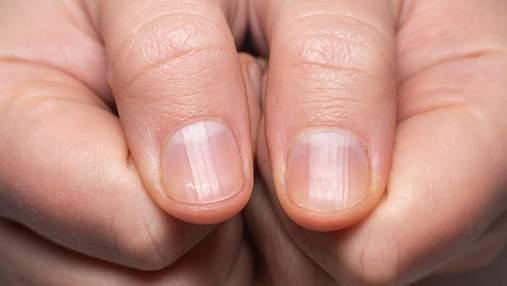 Коронавірусні нігті: як розпізнати новий симптом постковіду