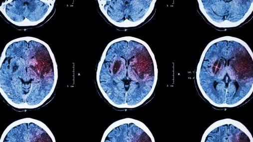 Коронавірус змінює обсяг сірої речовини в мозку: дослідження