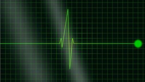 Британець вижив після 20-хвилинної зупинки серця: як йому це вдалося