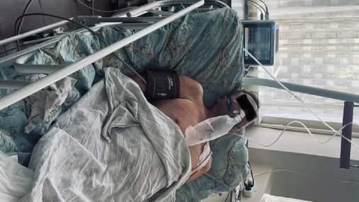 Лікарі з Дніпра врятували від COVID-19 чоловіка з однією легенею