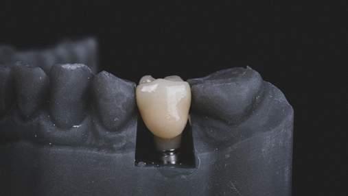 Проблеми з зубами викликають серйозні захворювання