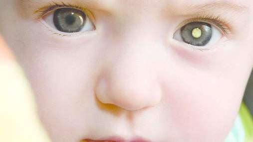 Женщина обнаружила рак у сына благодаря случайно сделанному фото со вспышкой