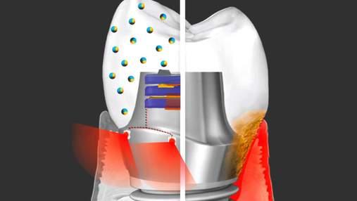 Создали зубной имплант, который поможет сохранить здоровье ротовой полости
