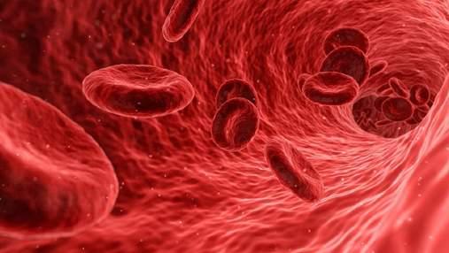 Понад 40% здорових людей не знають, що у них атеросклероз