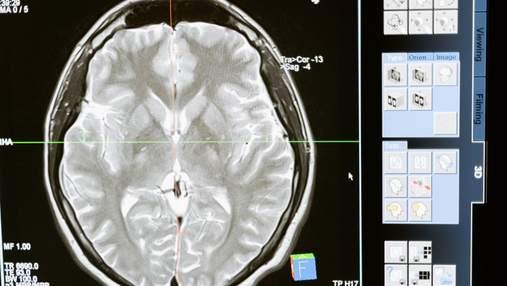 Новый алгоритм точно определяет риски деменции по томографии мозга