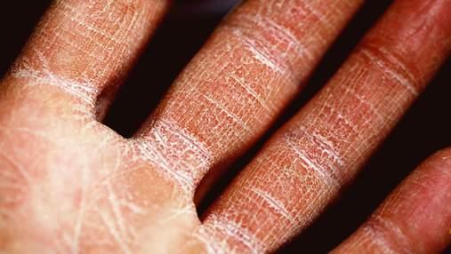 Экзема на руках: симптомы профилактика и лечение