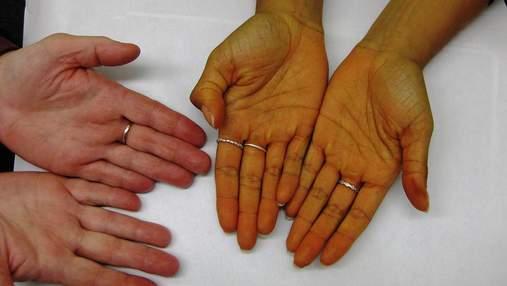 Чому жовтіє шкіра на руках та як це вилікувати