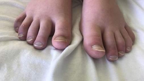 Ковідні пальці: назвали ще один незвичний прояв коронавірусу