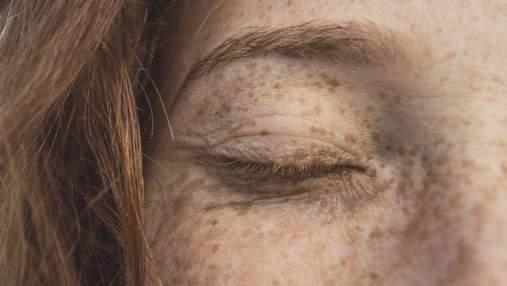 Як боротись з пігментацією шкіри
