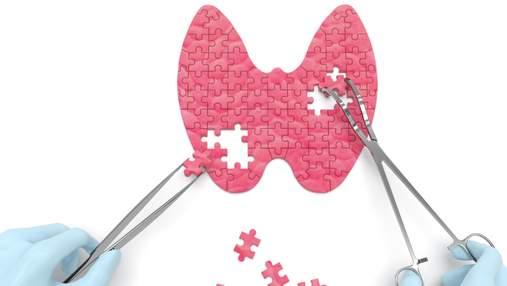 Жінки дедалі частіше мають проблеми зі щитоподібною залозою: як цьому зарадити